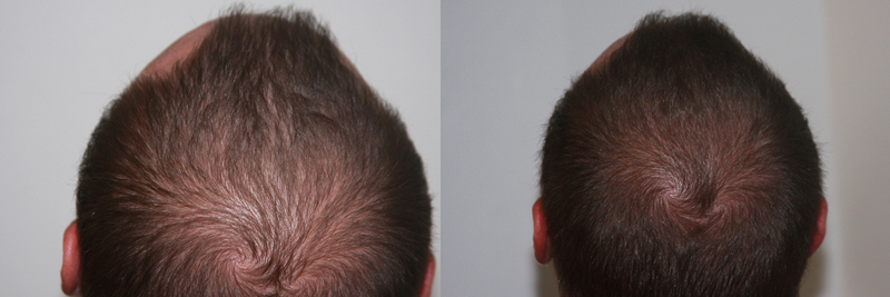 mens-hair-restoration-5