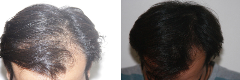 mens-hair-restoration-9