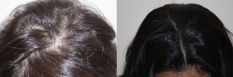 womens-hair-restoration-11