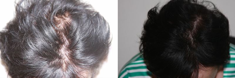 womens-hair-restoration-13