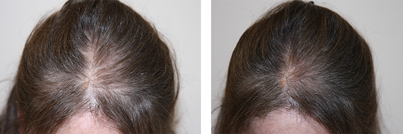 womens-hair-restoration-14