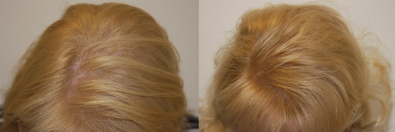womens-hair-restoration-4