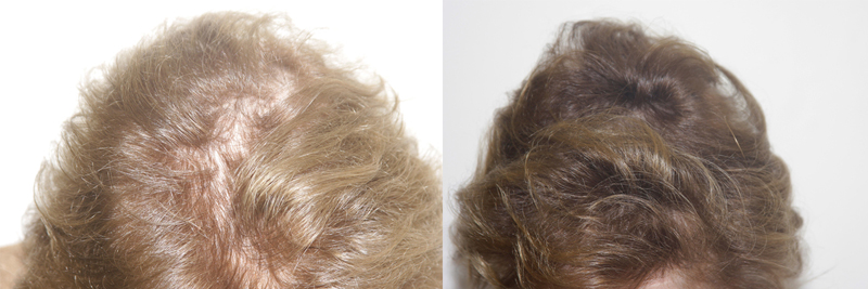 womens-hair-restoration-6