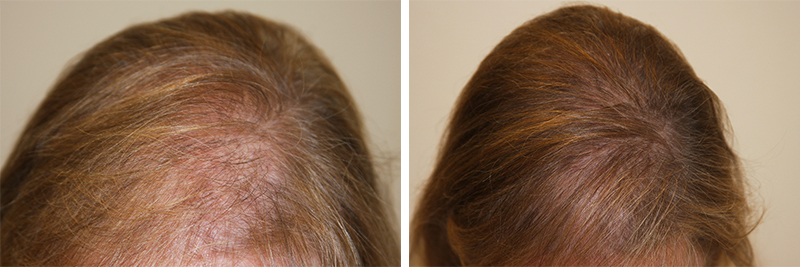 womens-hair-restoration-9