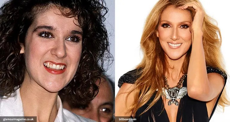 Celine Dion cosmetic dentistry