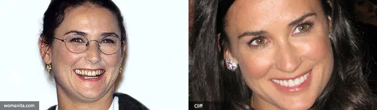 Demi Moore cosmetic dentistry
