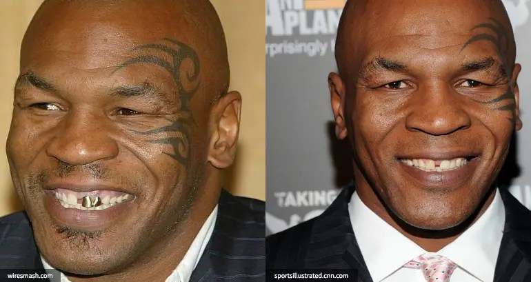 Mike Tyson's teeth before and after