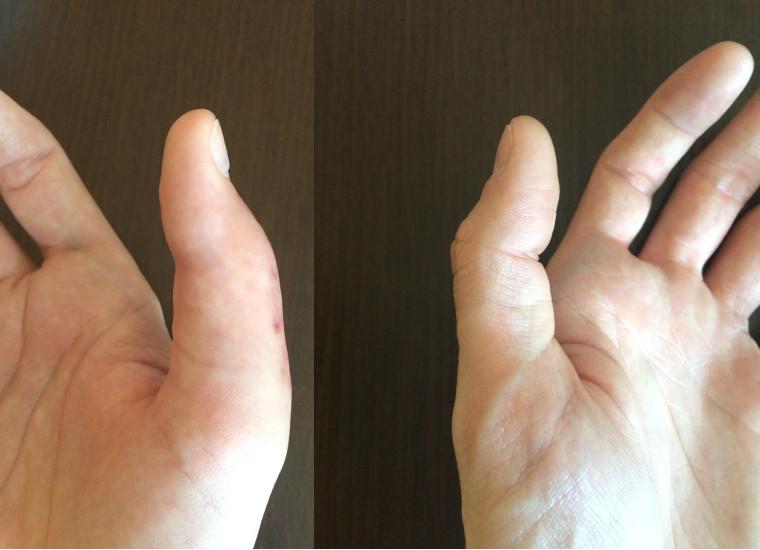 Kciuk po operacji porównanie