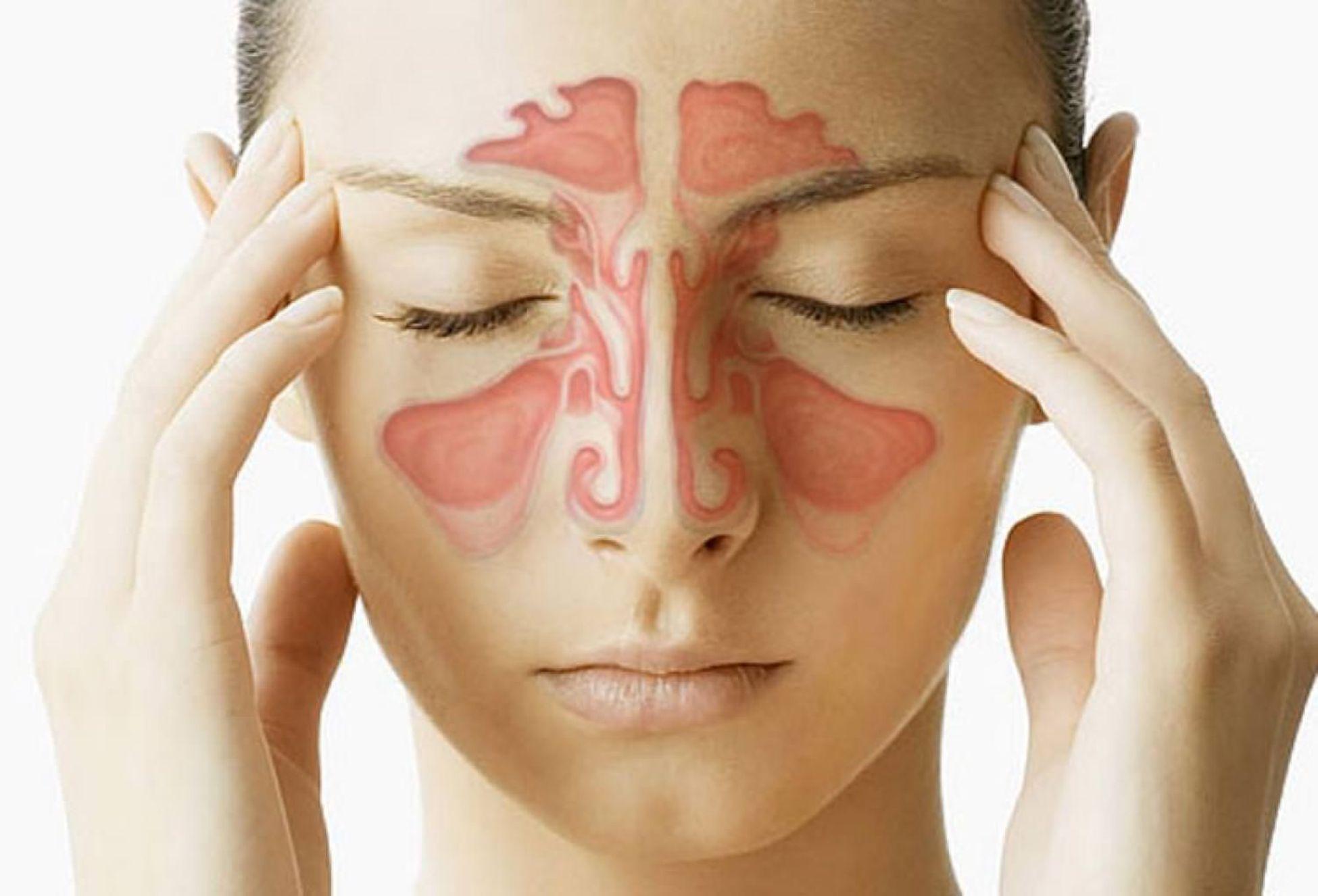 O alívio da sinusite através da acupuntura