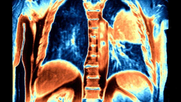 La inmunoterapia puede extender la vida de pacientes con cáncer de pulmón