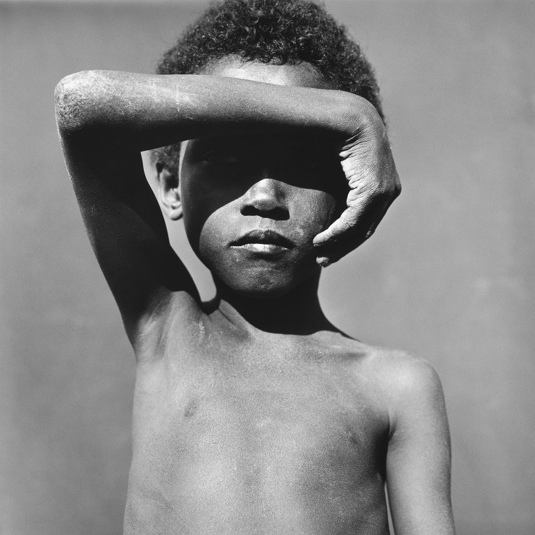 Image- A hunting image of a malnourished Young Somali Refugee. His hand is used to cover his face to prevent the glare of the sun. It shows the consequence of a country ravaged by and natural disaster and Somalia pirates