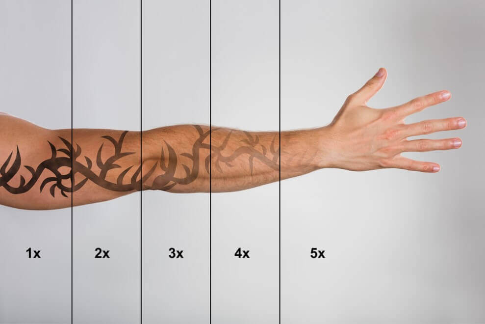 Laser Tattoo Removal - How To Remove Tattoos Naturally