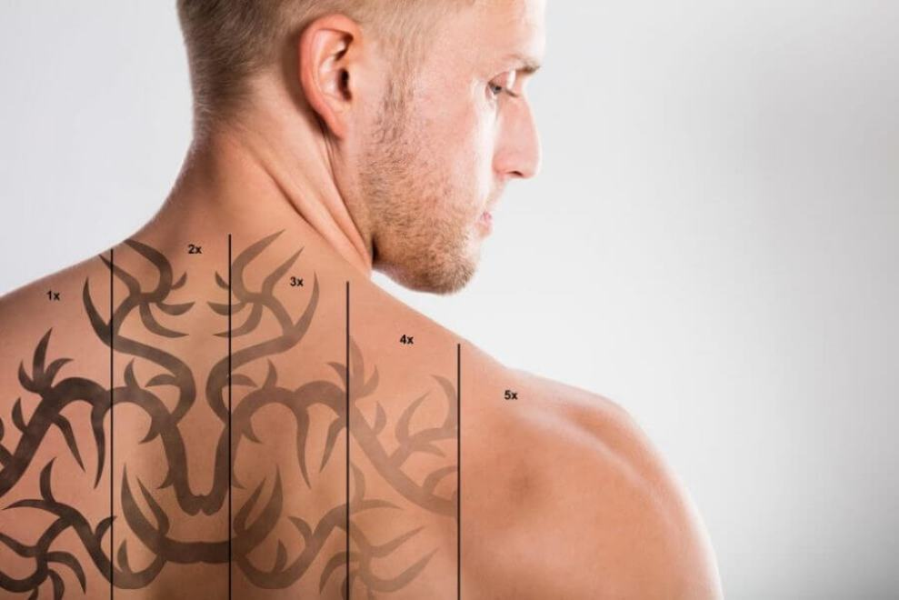 Tattoo Removal - How To Remove Tattoos Naturally
