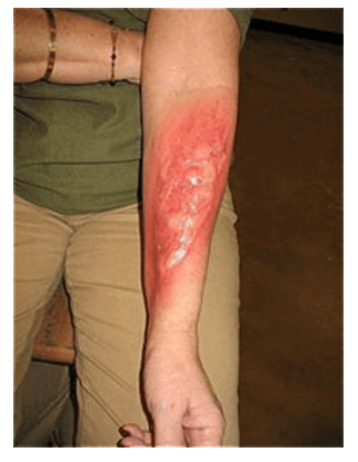 tattoo removed - How To Remove Tattoos Naturally