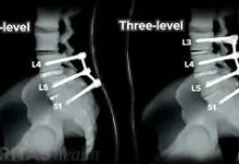 multilevel spinal fusion