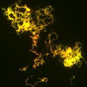 Chording_mycobacterium_tuberculesis_culture