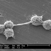 Five hartmannella vermiformis amoebae trophozoites