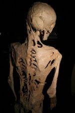 article cats stone man syndrome wikimedia