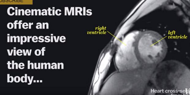 MRI Machine (Vox)