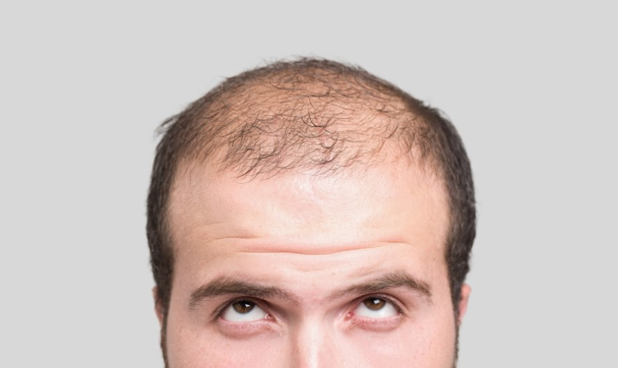 Alopecia Treatment Market Share, Industry Size and Research Report 2021