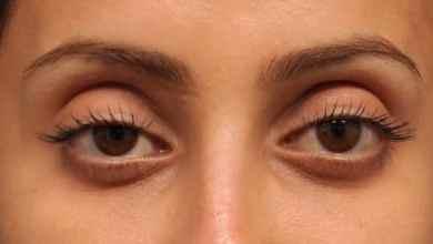Photo of Sunken Eyes – How To Get Rid Of Sunken Eyes