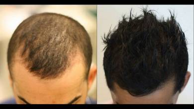 Photo of Heal The Hair Loss With PRP Hair Treatment