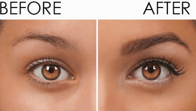 Photo of Restore your hair with eyebrow restoration