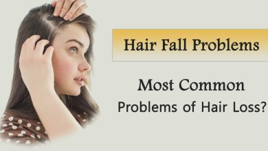 Photo of You Need to Know the Popular Causes of Hair Fall before a Hair Transplant
