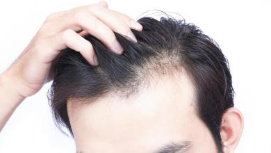 Photo of The Way to Choose Right Surgeon for Hair Transplant.