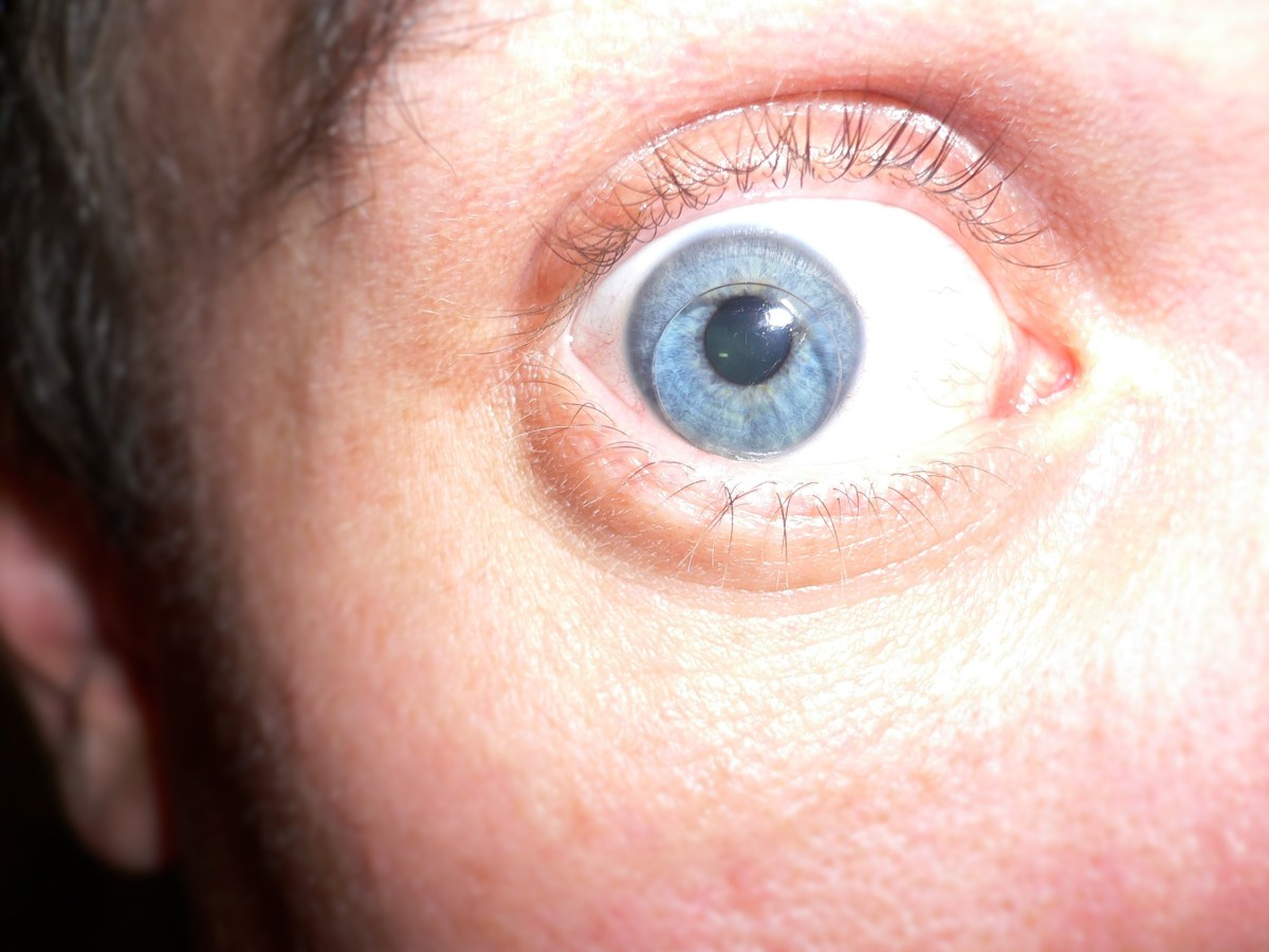 Self Portrait With Hard Contact Lense