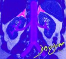 The-adrenal-glands-and-the-kidneys-in-blue