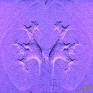 genitourinary tract, genitourinary system, kidneys, calyces, fornix, papilla, infundibulum, infundibula, renal pelvis, ureter, urine, anatomy, Art in Anatomy Ashley Davidoff MD, bonding