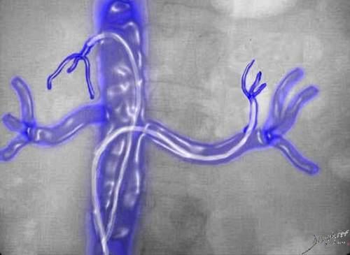 adrenals, adrenal gland, veins, IVCadrenal veins, catheterization, diagnosis