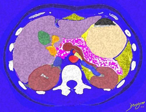 abdomen, pancreas, liver, gallbladder, kidneys, CT scan, Art in Anatomy, Ashley Davidoff MD