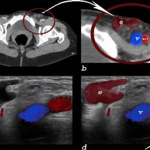 skin, genitourinary tract, genitourinary system, woman, Art in Anatomy, Ashley Davidoff MD, endometriosis, ultrasound, CT scan