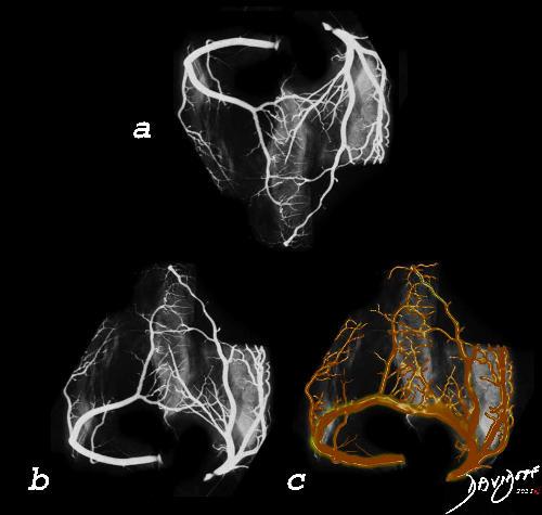 heart, arteries, coronary arteries, right coronary artery, left coronary artery, circulation, crown, X-ray, art, the common vein, art in anatomy, Ashley Davidoff MD