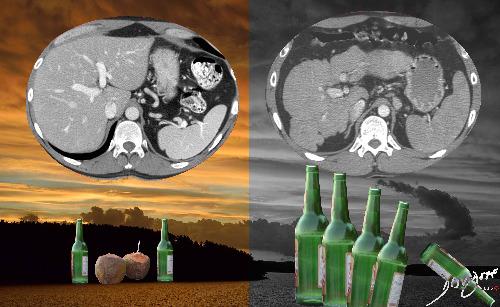 alcohol, liver, drunk, alcoholism, inebriated, behavior, behavior, self-control, addiction, cirrhosis, CT scan, art, hepatic cirrhosis, size, shape, the common vein, art in anatomy, Ashley Davidoff MD