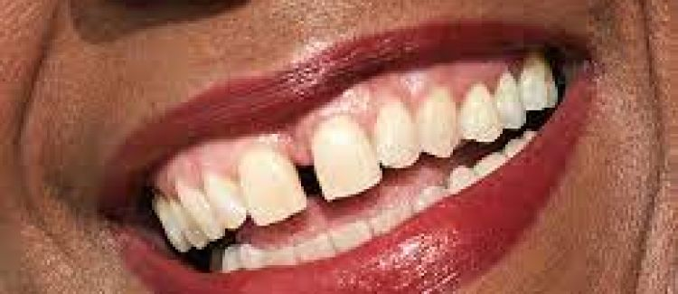 Gapped Teeth: What Are My Treatment Options?