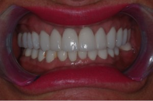 Dental Crown Picture After