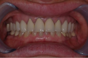 Dental Crown Before Picture