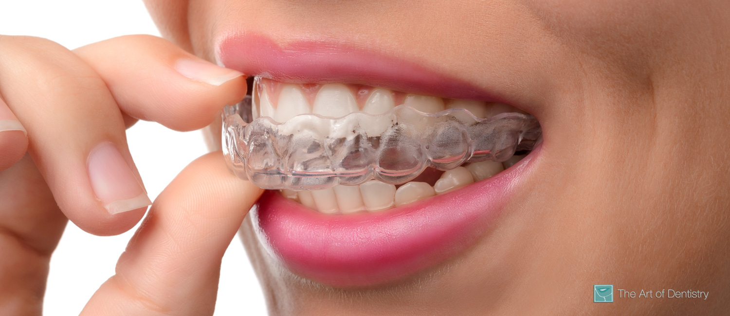 Invisible Invisalign Braces dentist in Yorkville Toronto Ontario