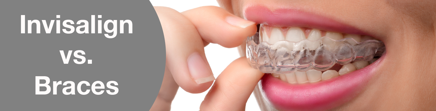 What is the difference between Invialign and Braces