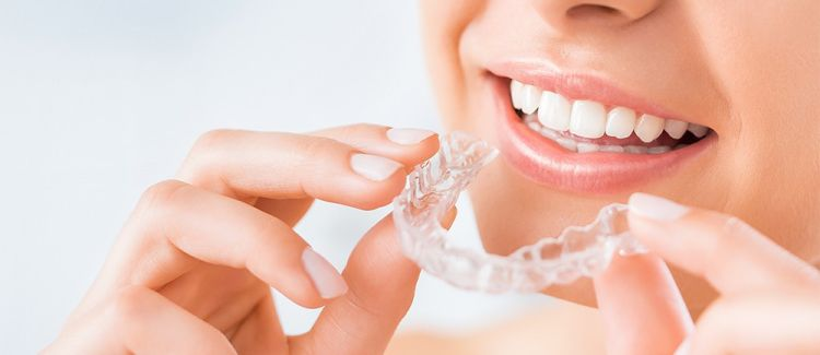 What is the Cost of Invisalign in Canada?