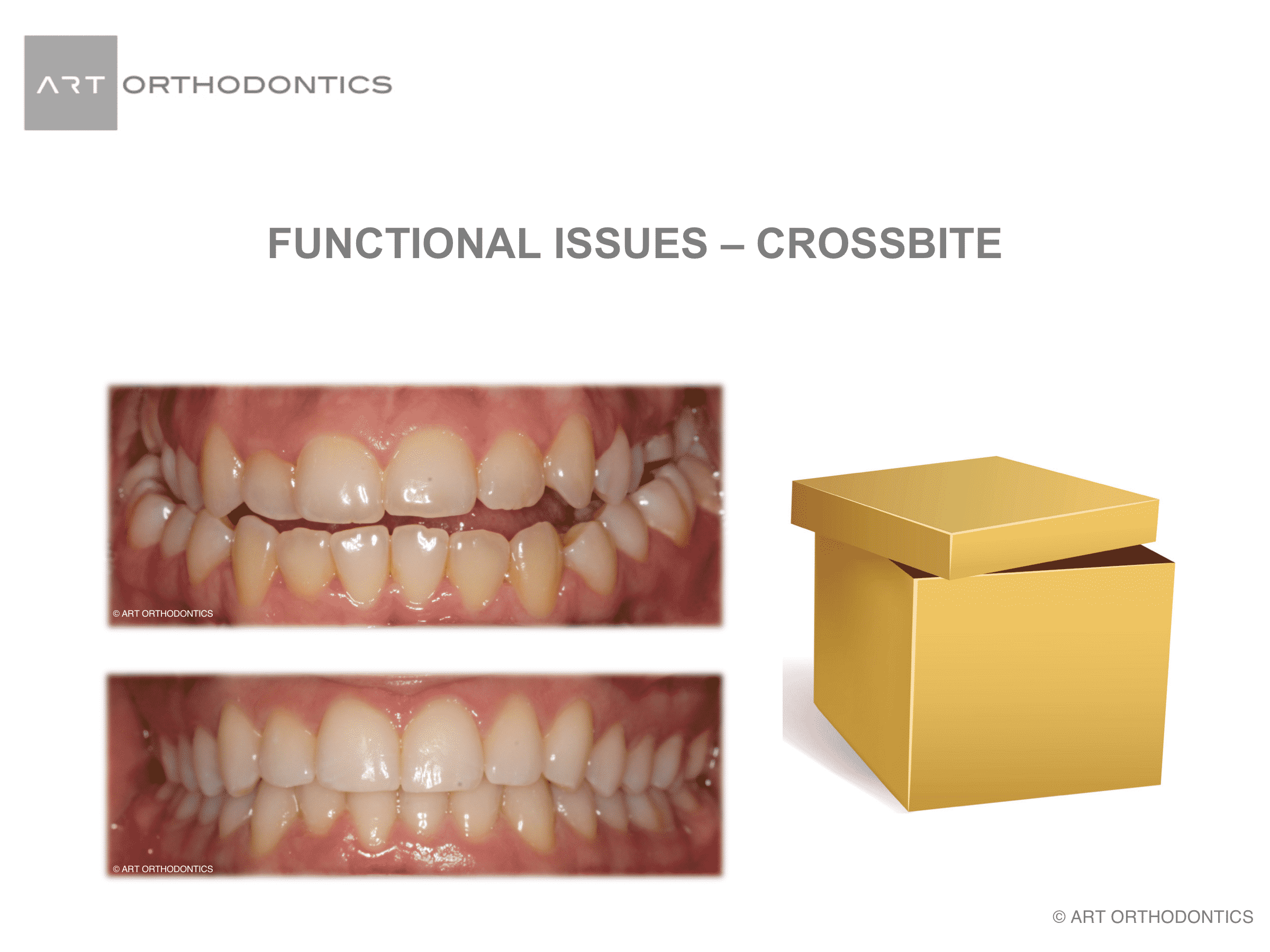 Images of a dental cross bite and a simulation with a box