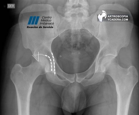 Radiología de la cadera - Artroscopia de Cadera Colombia