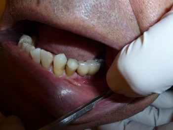 implant, dentist