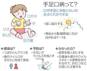 「手足口病」の画像検索結果