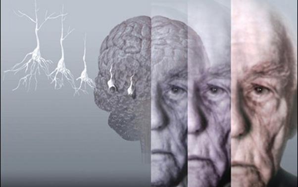 Imagen con licencia CC por www.medciencia.com