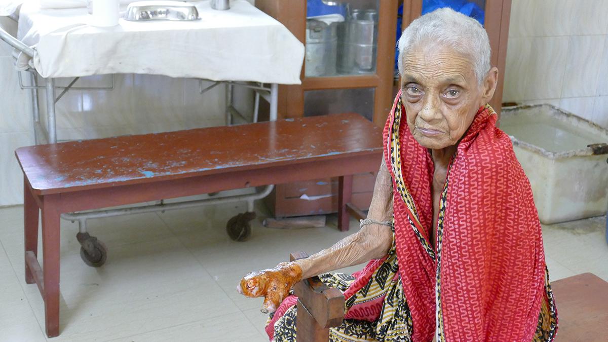 Leprakranke Frau mit abgestorbener Hand (Foto: Cornelia Mallebrein)