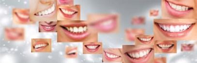 sourire1050-2